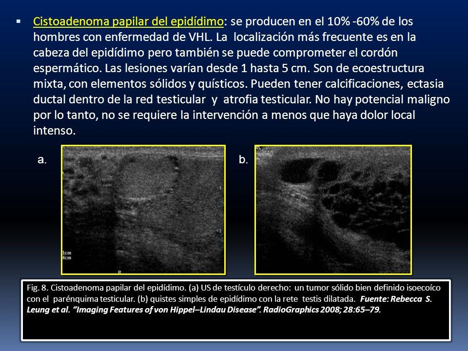 Cistoadenoma papilar del epidídimo: se producen en el 10% -60% de los hombres con enfermedad de VHL. La localización más frecuente es en la cabeza del epidídimo pero también se puede comprometer el cordón espermático. Las lesiones varían desde 1 hasta 5 cm. Son de ecoestructura mixta, con elementos sólidos y quísticos. Pueden tener calcificaciones, ectasia ductal dentro de la red testicular y atrofia testicular. No hay potencial maligno por lo tanto, no se requiere la intervención a menos que haya dolor local intenso.