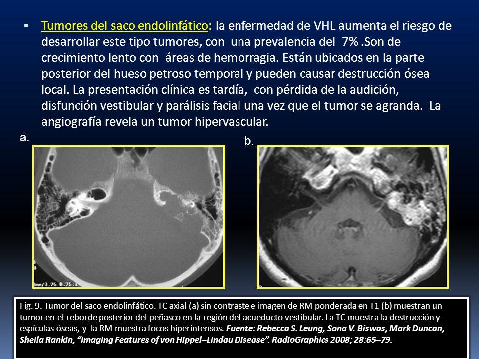 Tumores del saco endolinfático: la enfermedad de VHL aumenta el riesgo de desarrollar este tipo tumores, con una prevalencia del 7% .Son de crecimiento lento con áreas de hemorragia. Están ubicados en la parte posterior del hueso petroso temporal y pueden causar destrucción ósea local. La presentación clínica es tardía, con pérdida de la audición, disfunción vestibular y parálisis facial una vez que el tumor se agranda. La angiografía revela un tumor hipervascular.