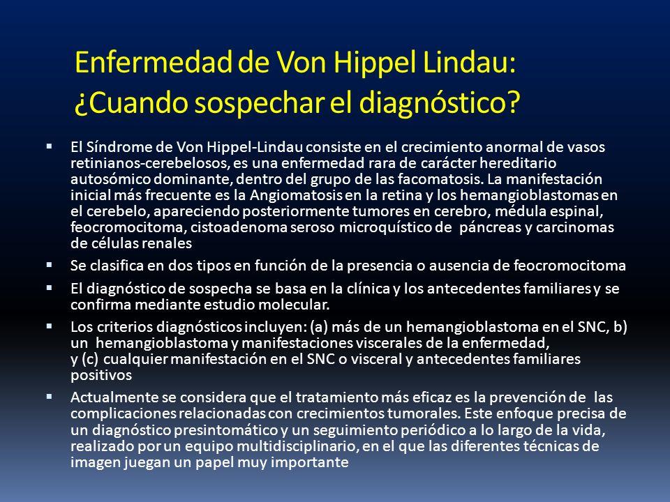 Enfermedad de Von Hippel Lindau: ¿Cuando sospechar el diagnóstico