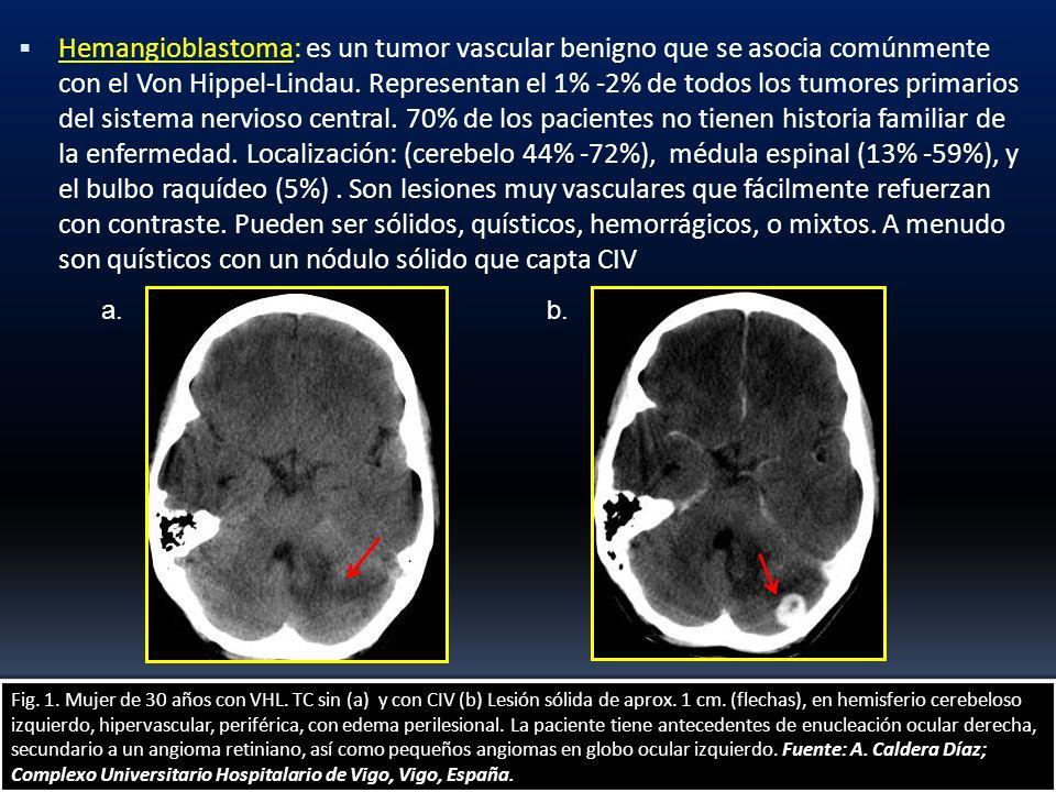 Hemangioblastoma: es un tumor vascular benigno que se asocia comúnmente con el Von Hippel-Lindau. Representan el 1% -2% de todos los tumores primarios del sistema nervioso central. 70% de los pacientes no tienen historia familiar de la enfermedad. Localización: (cerebelo 44% -72%), médula espinal (13% -59%), y el bulbo raquídeo (5%) . Son lesiones muy vasculares que fácilmente refuerzan con contraste. Pueden ser sólidos, quísticos, hemorrágicos, o mixtos. A menudo son quísticos con un nódulo sólido que capta CIV