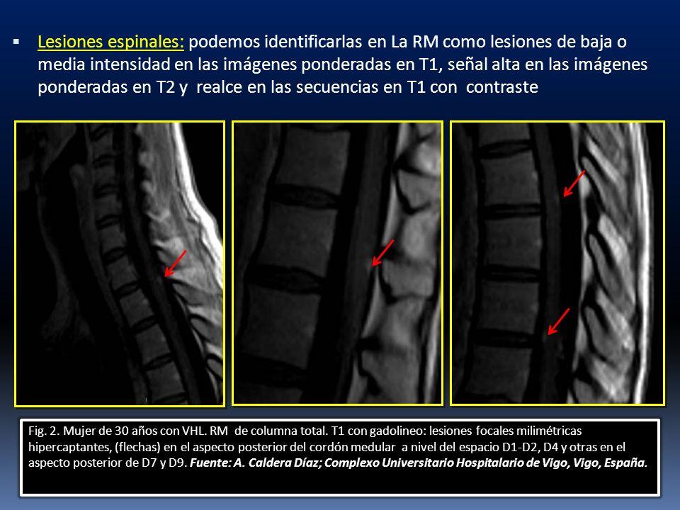 Lesiones espinales: podemos identificarlas en La RM como lesiones de baja o media intensidad en las imágenes ponderadas en T1, señal alta en las imágenes ponderadas en T2 y realce en las secuencias en T1 con contraste