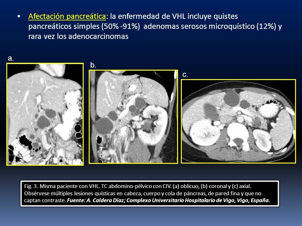 Afectación pancreática: la enfermedad de VHL incluye quistes pancreáticos simples (50% -91%) adenomas serosos microquístico (12%) y rara vez los adenocarcinomas