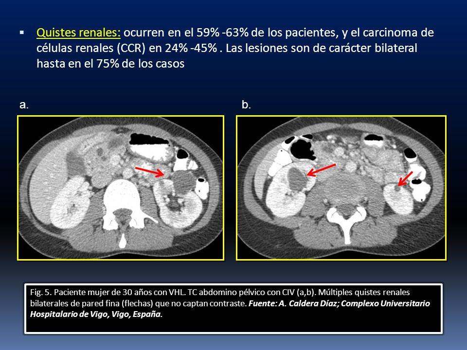 Quistes renales: ocurren en el 59% -63% de los pacientes, y el carcinoma de células renales (CCR) en 24% -45% . Las lesiones son de carácter bilateral hasta en el 75% de los casos