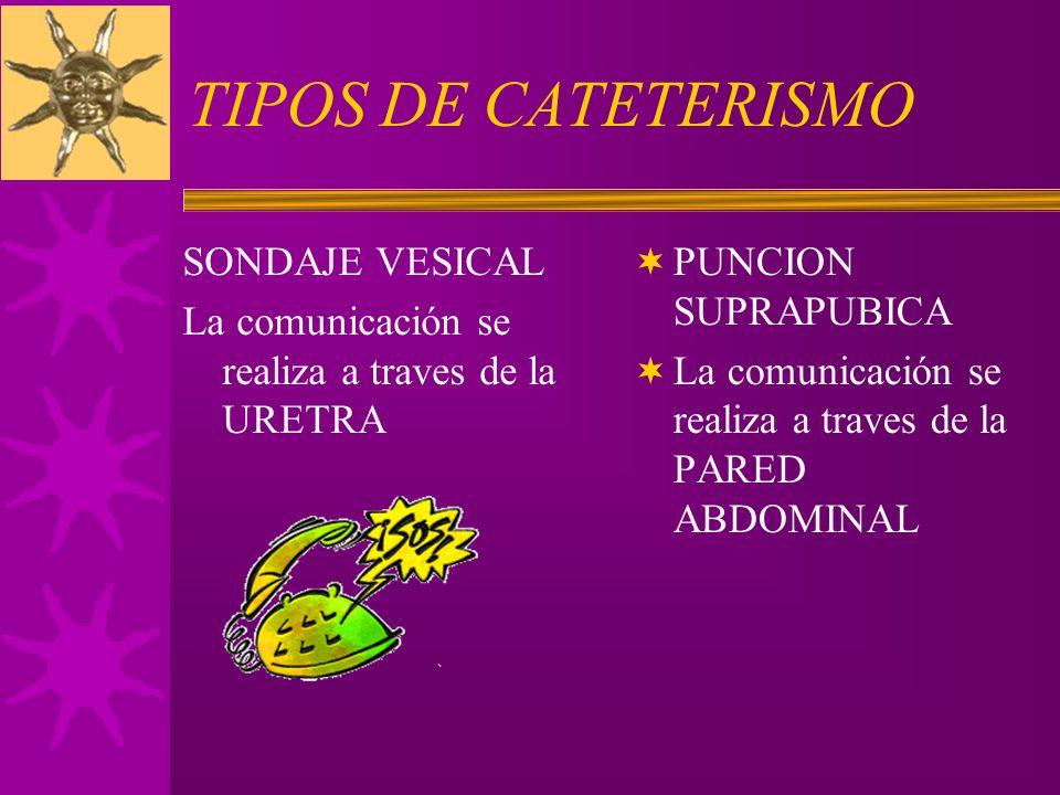 TIPOS DE CATETERISMO SONDAJE VESICAL