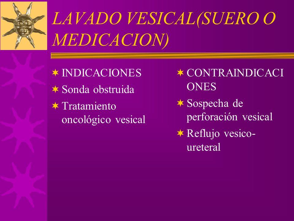 LAVADO VESICAL(SUERO O MEDICACION)