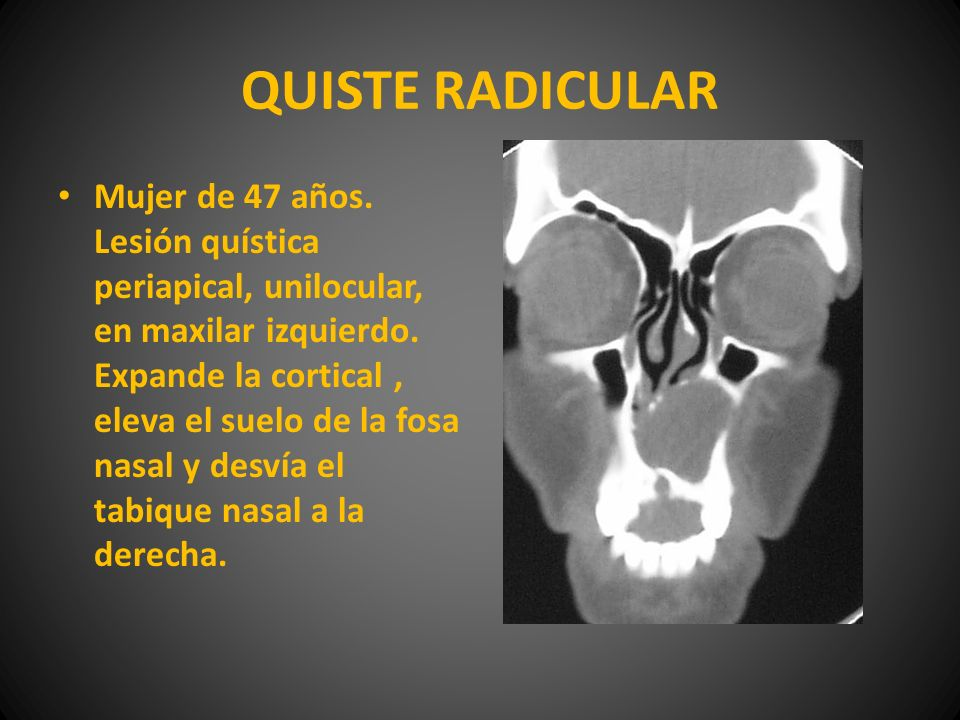QUISTE RADICULAR