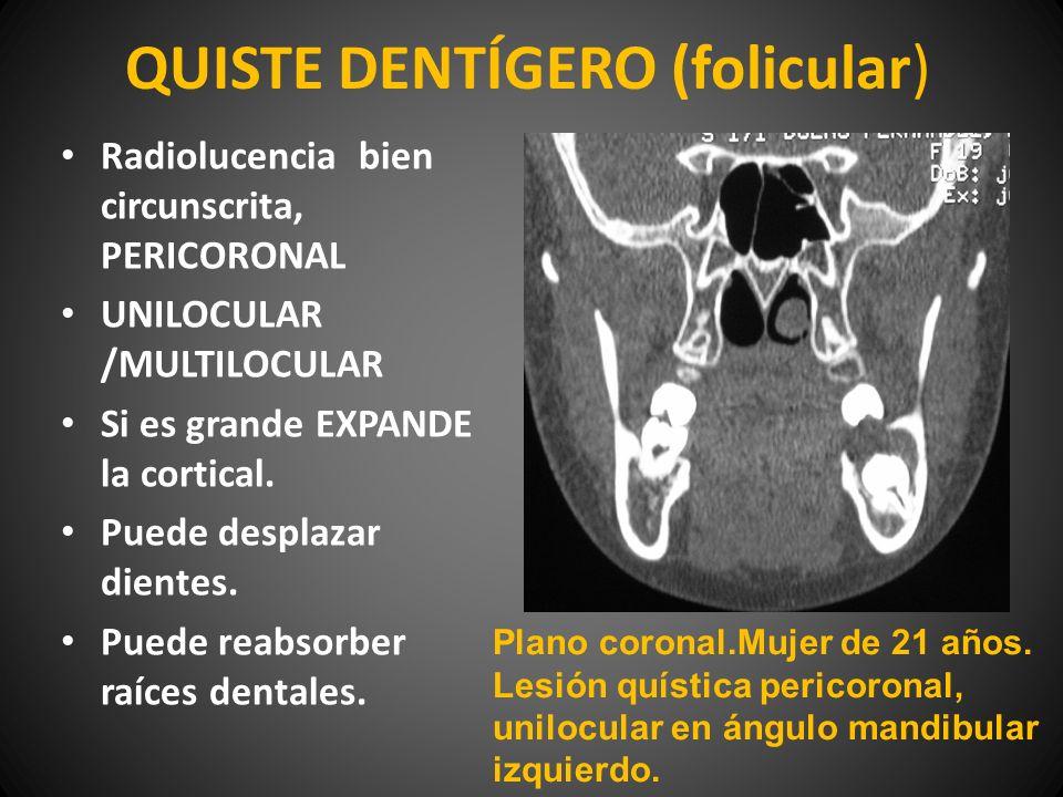 QUISTE DENTÍGERO (folicular)