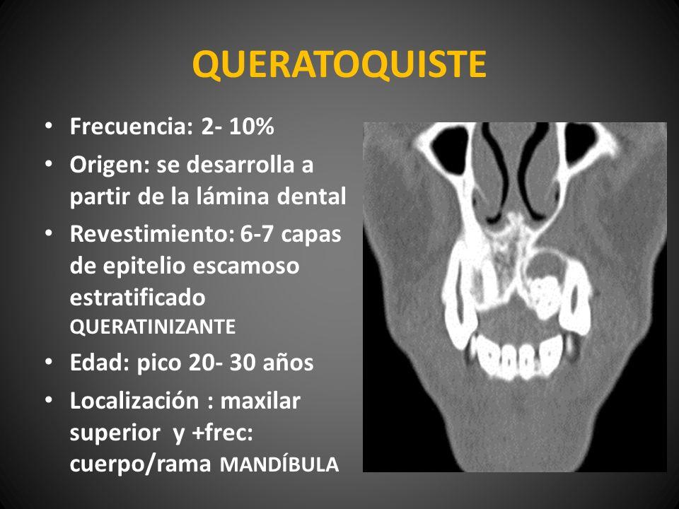 QUERATOQUISTE Frecuencia: 2- 10%