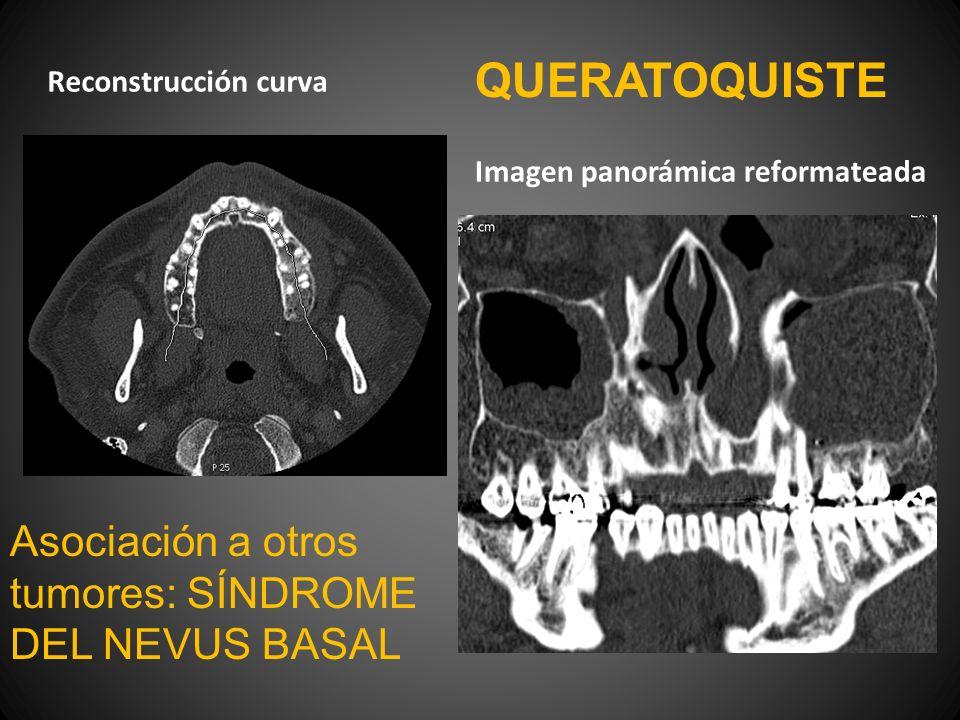 QUERATOQUISTE Asociación a otros tumores: SÍNDROME DEL NEVUS BASAL