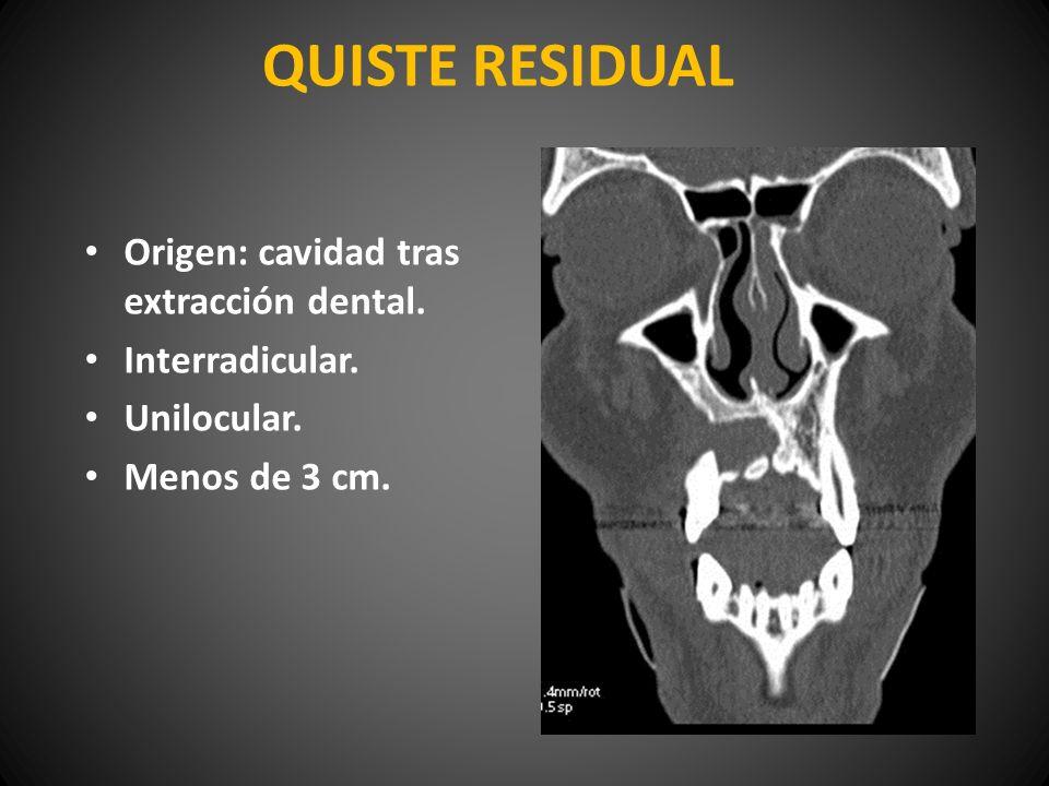 QUISTE RESIDUAL Origen: cavidad tras extracción dental.