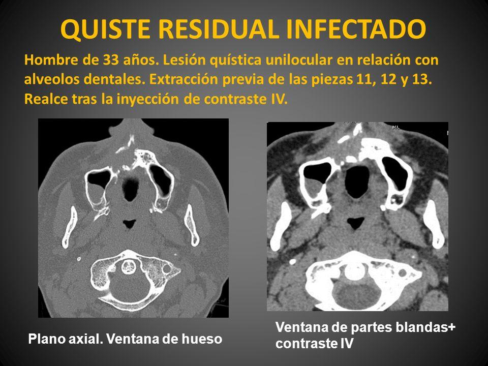 QUISTE RESIDUAL INFECTADO