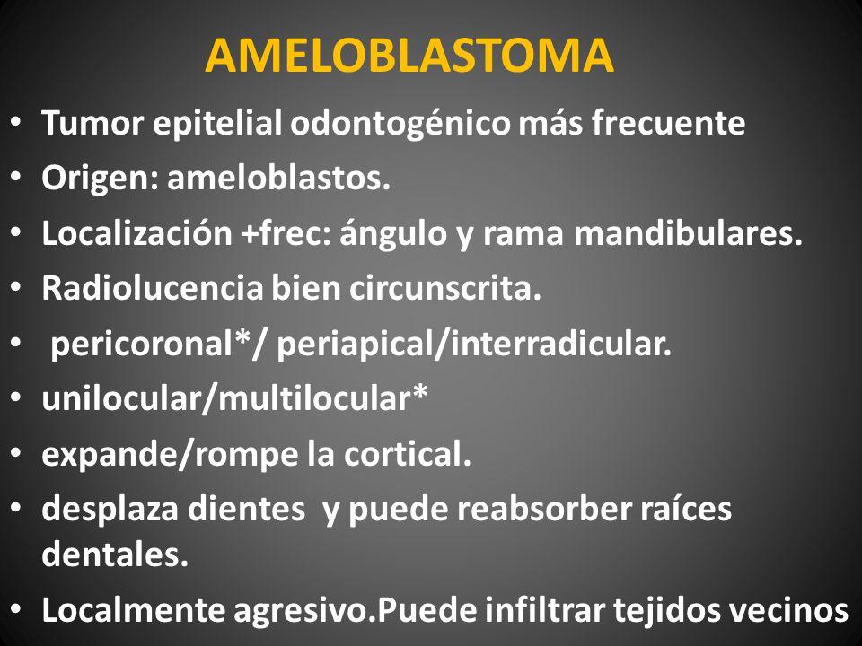 AMELOBLASTOMA Tumor epitelial odontogénico más frecuente