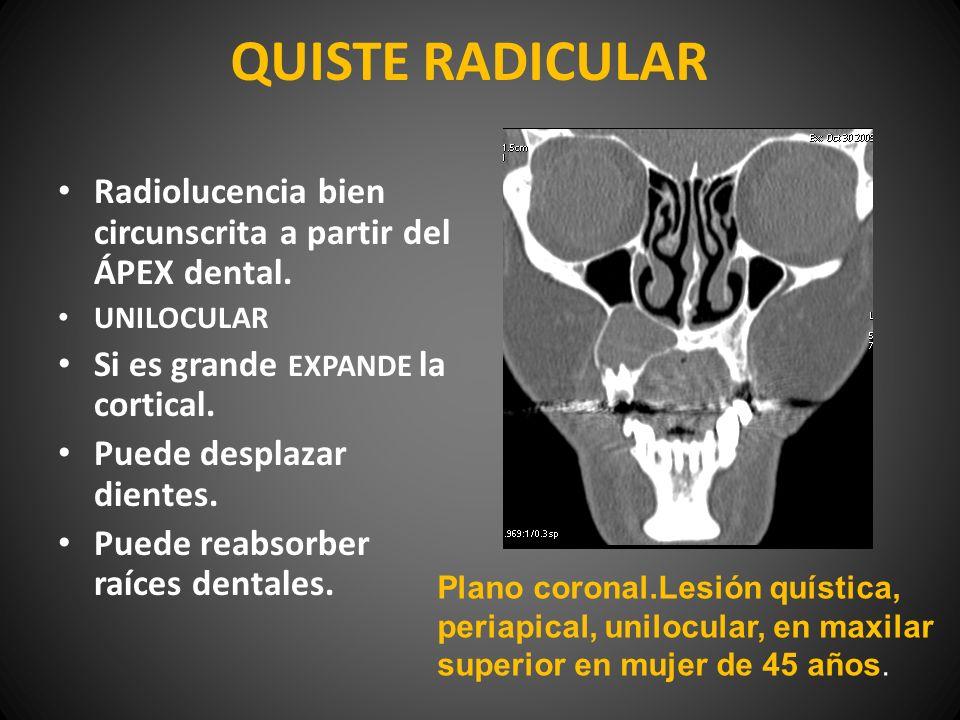QUISTE RADICULAR Radiolucencia bien circunscrita a partir del ÁPEX dental. UNILOCULAR. Si es grande EXPANDE la cortical.