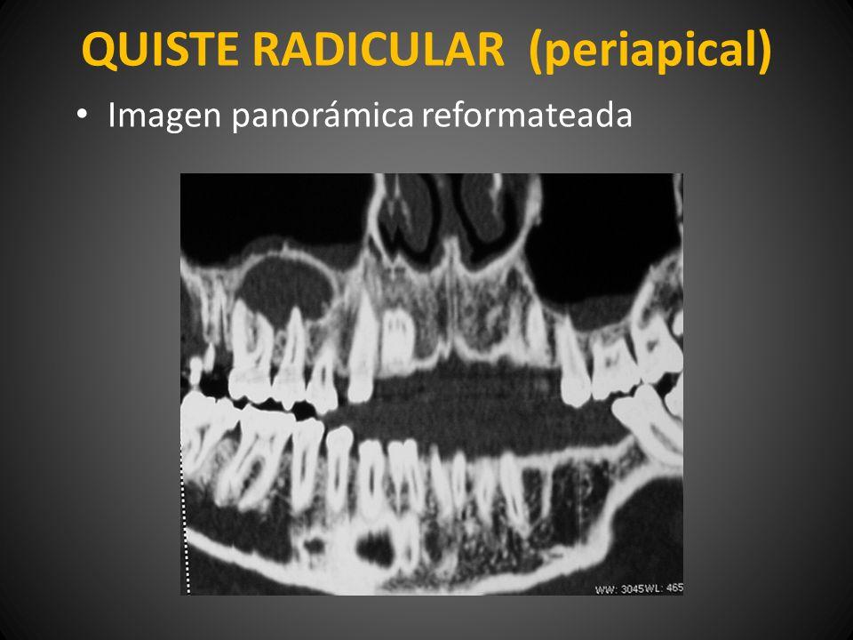QUISTE RADICULAR (periapical)