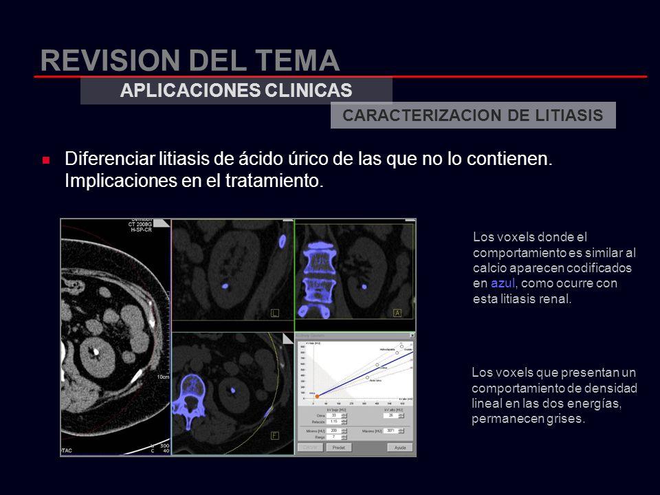 APLICACIONES CLINICAS CARACTERIZACION DE LITIASIS