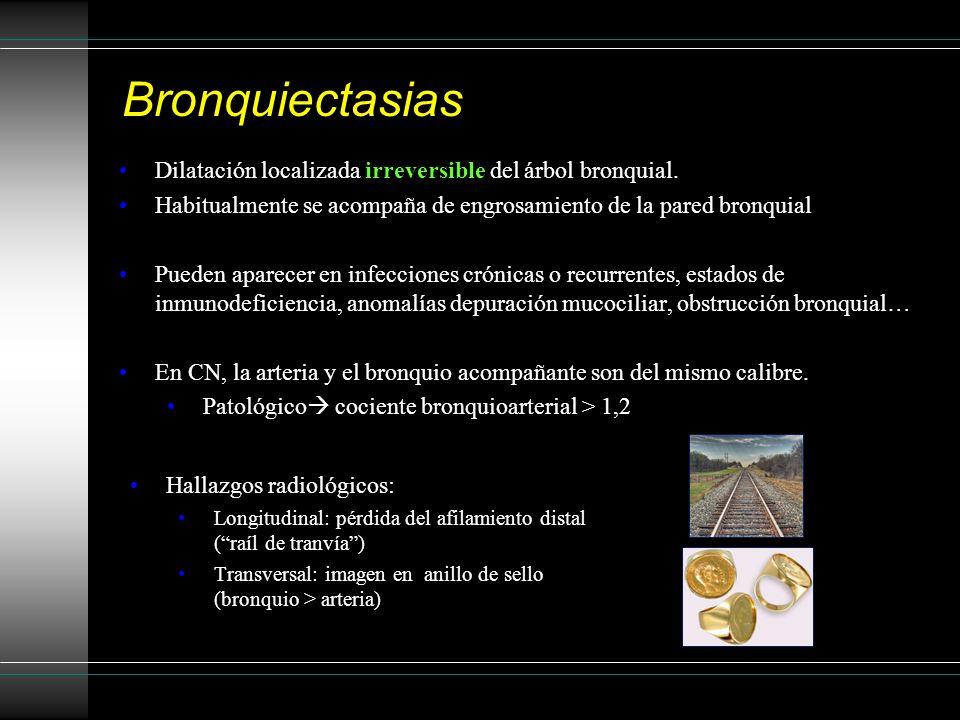 Bronquiectasias Dilatación localizada irreversible del árbol bronquial. Habitualmente se acompaña de engrosamiento de la pared bronquial.