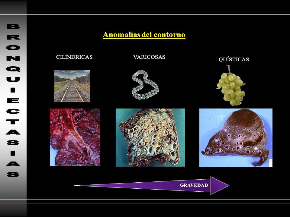 BRONQUIECTASIAS Anomalías del contorno CILÍNDRICAS VARICOSAS QUÍSTICAS