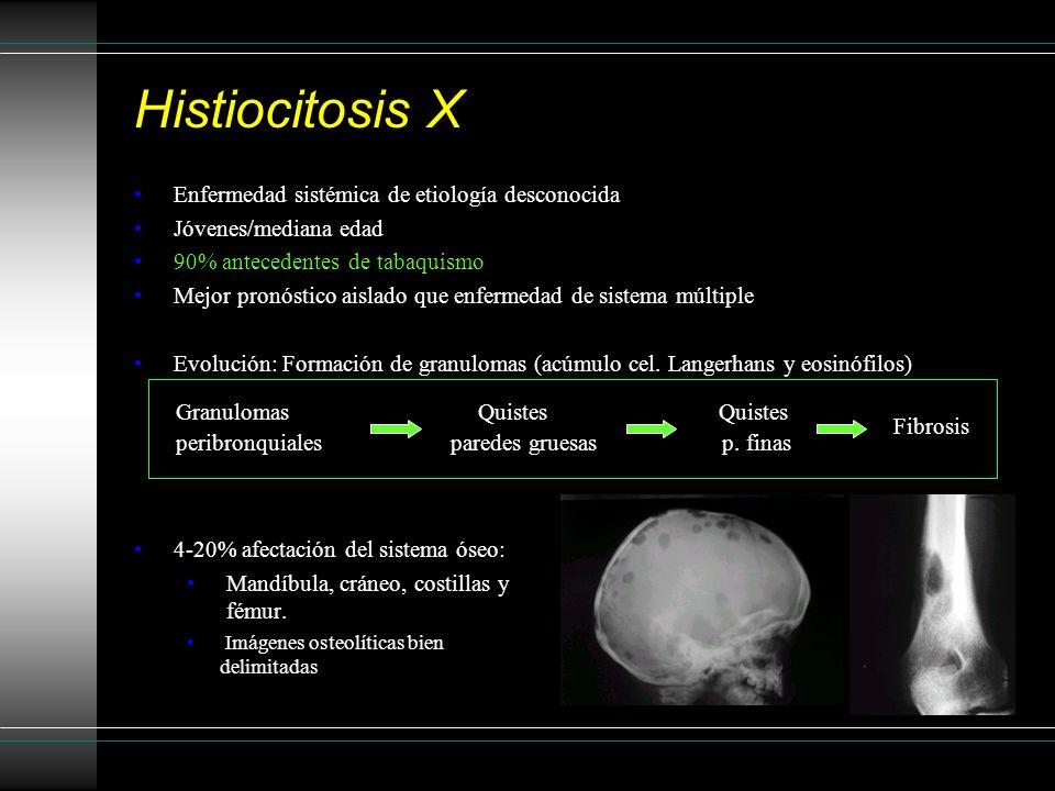 Histiocitosis X Enfermedad sistémica de etiología desconocida