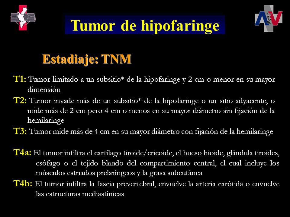 Tumor de hipofaringe Estadiaje: TNM