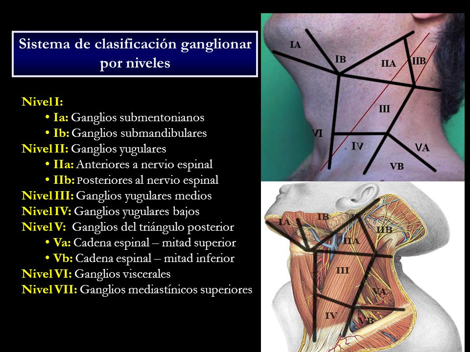 Sistema de clasificación ganglionar por niveles