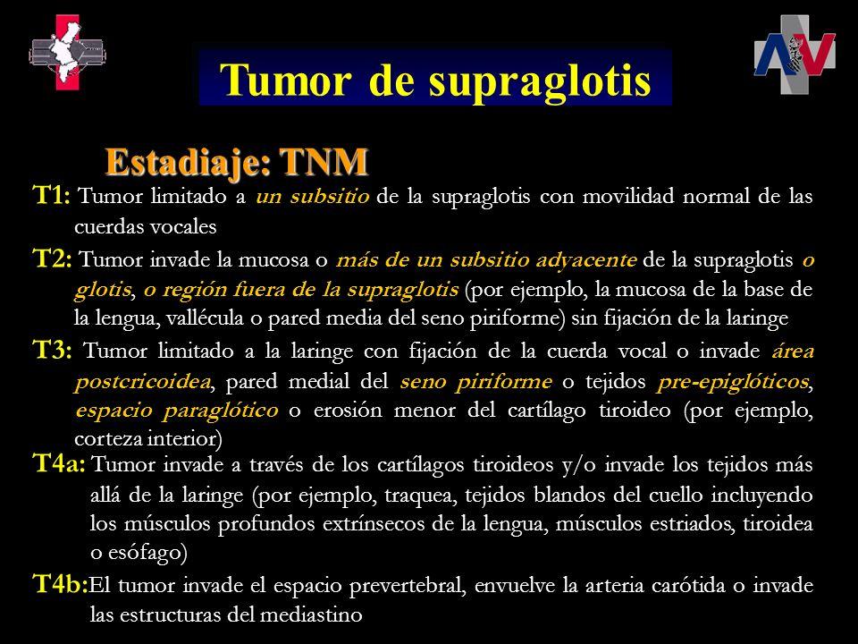 Tumor de supraglotis Estadiaje: TNM