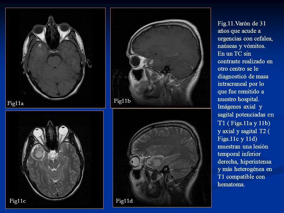 Fig.11.Varón de 31 años que acude a urgencias con cefalea, naúseas y vómitos.