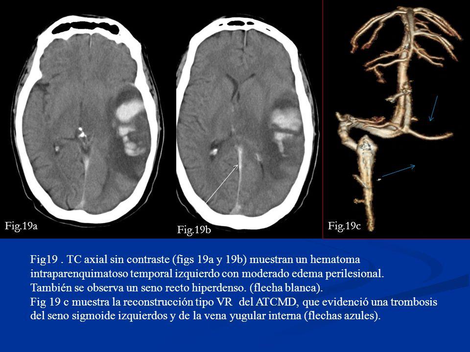 Fig.19a Fig.19c. Fig.19b.