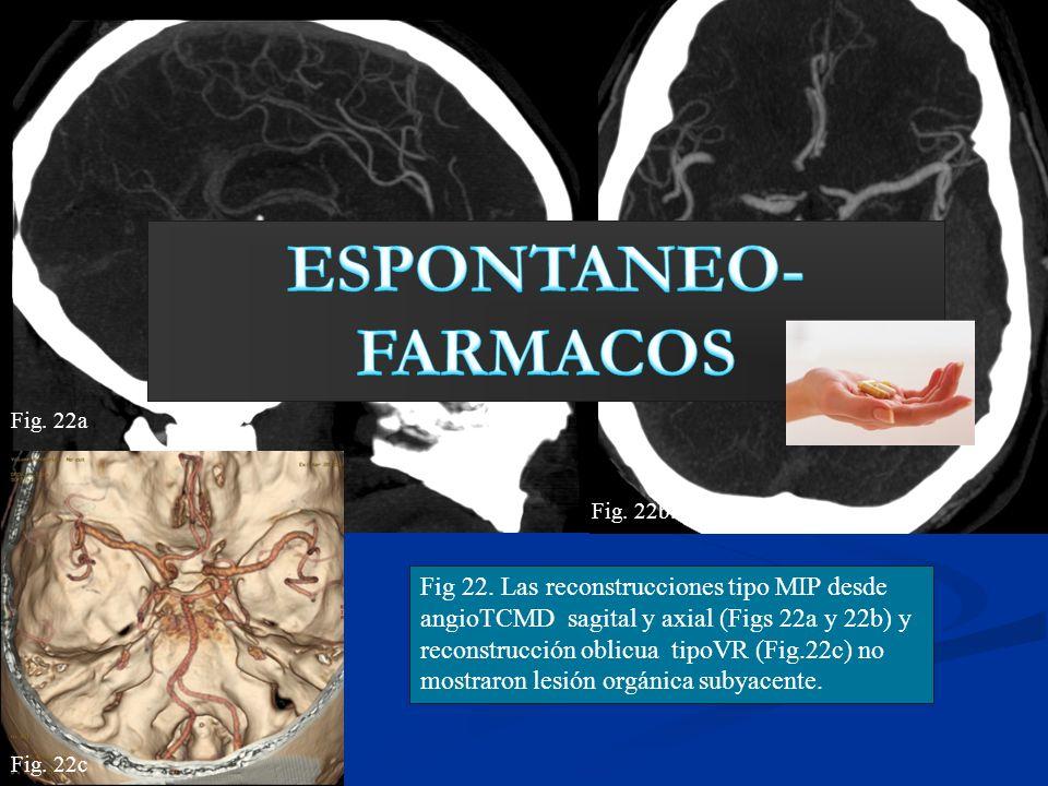 ESPONTANEO-FARMACOS Fig. 22a. Fig. 22b.