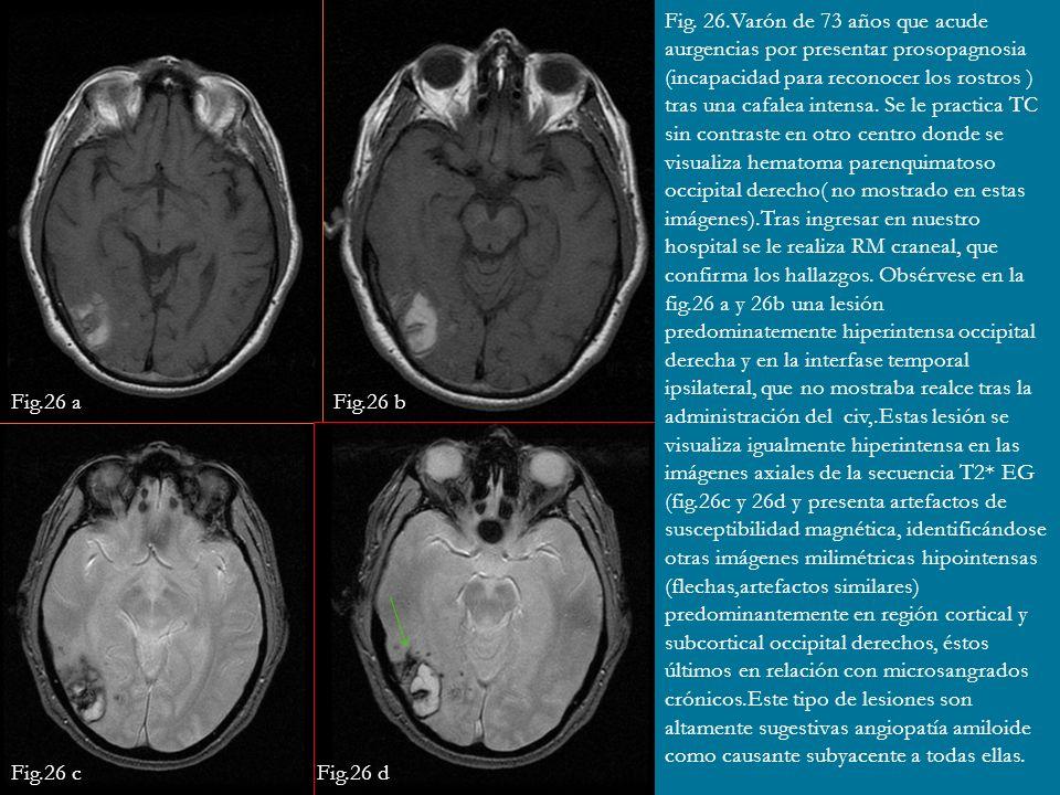 Fig. 26.Varón de 73 años que acude aurgencias por presentar prosopagnosia (incapacidad para reconocer los rostros ) tras una cafalea intensa. Se le practica TC sin contraste en otro centro donde se visualiza hematoma parenquimatoso