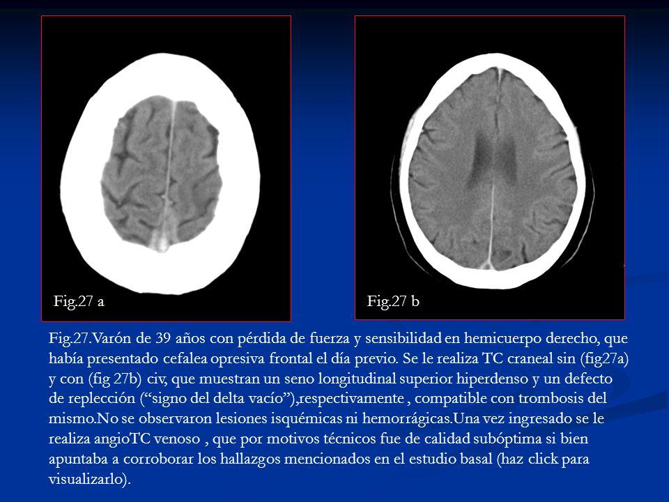 Fig.27 a Fig.27 b.
