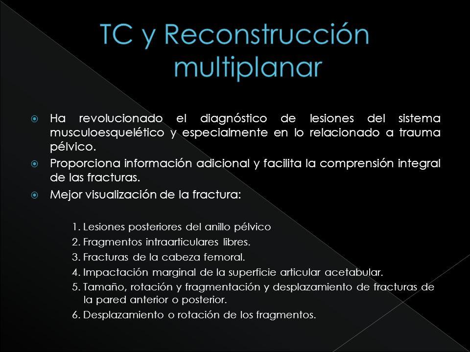TC y Reconstrucción multiplanar