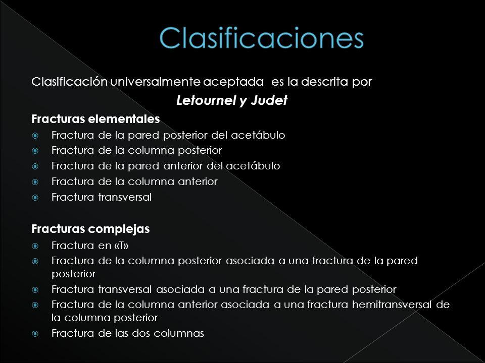 Clasificaciones Clasificación universalmente aceptada es la descrita por. Letournel y Judet. Fracturas elementales.