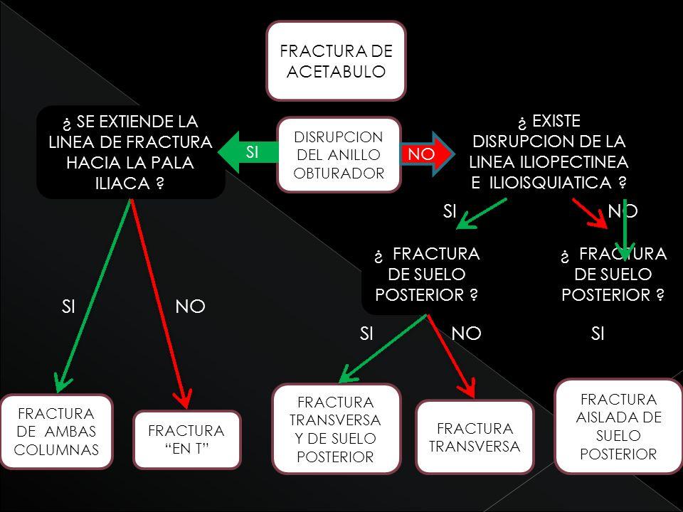 SI NO SI NO SI NO SI FRACTURA DE ACETABULO