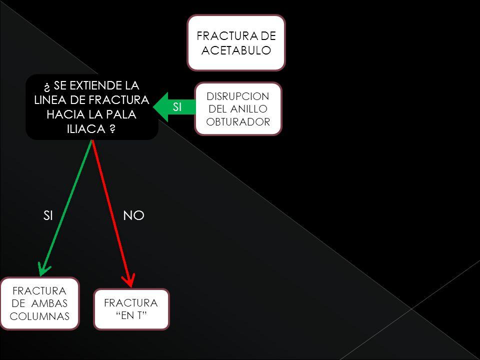 SI NO FRACTURA DE ACETABULO