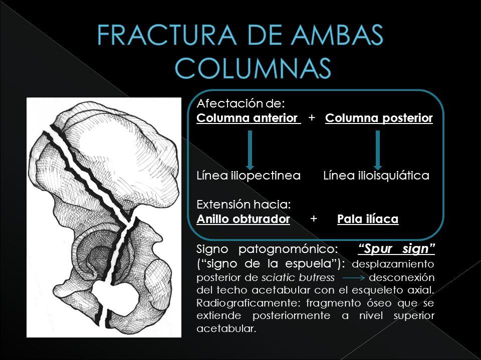 FRACTURA DE AMBAS COLUMNAS