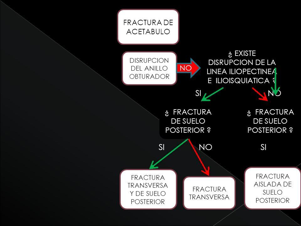 SI NO SI NO SI FRACTURA DE ACETABULO