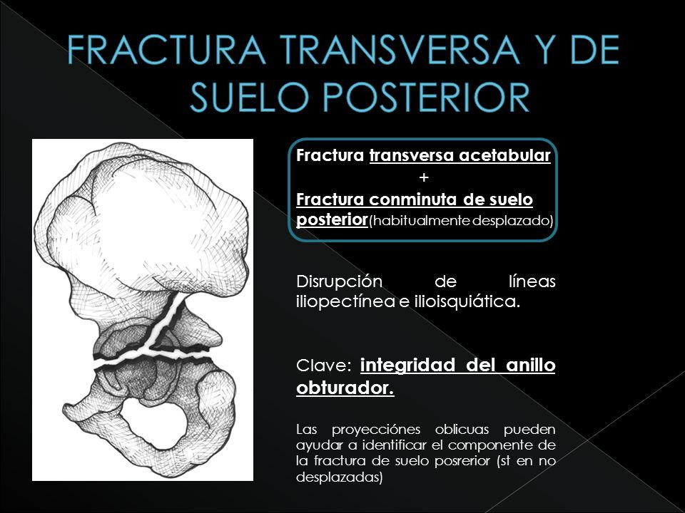 FRACTURA TRANSVERSA Y DE SUELO POSTERIOR