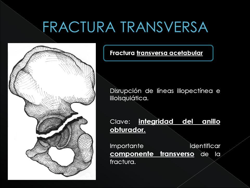 FRACTURA TRANSVERSA Fractura transversa acetabular