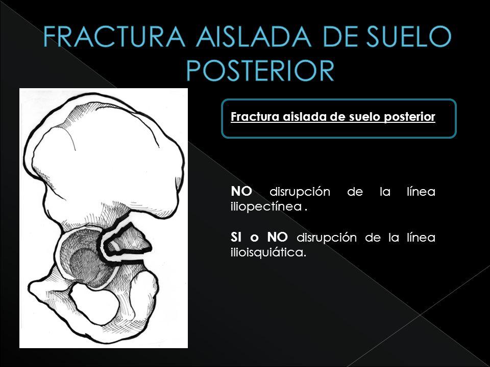 FRACTURA AISLADA DE SUELO POSTERIOR