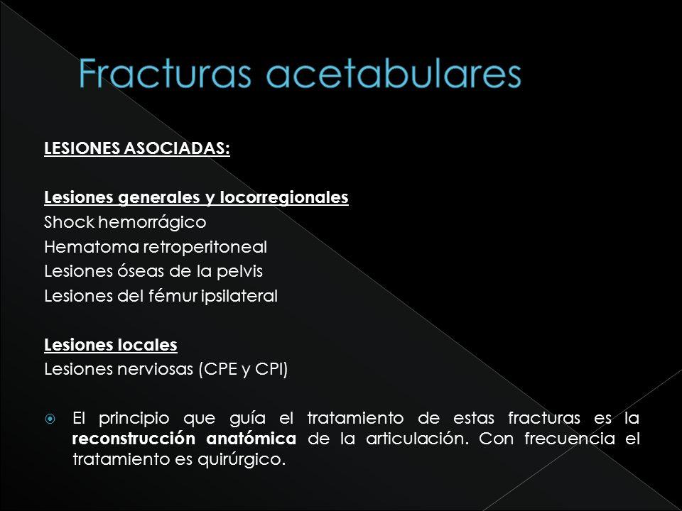 Fracturas acetabulares