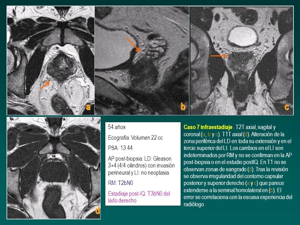 54 añosEcografía: Volumen 22 cc. PSA: 13.44. AP post-biopsia: LD: Gleason 3+4 (4/4 cilindros) con invasión perineural y LI: no neoplasia.