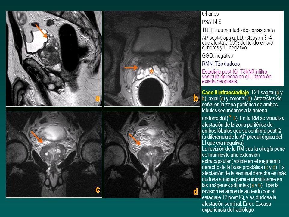 64 años PSA:14.9. TR: LD aumentado de consistencia. AP post-biopsia: LD: Gleason 3+4 que afecta el 50% del tejido en 5/5 cilindros y LI negativo.