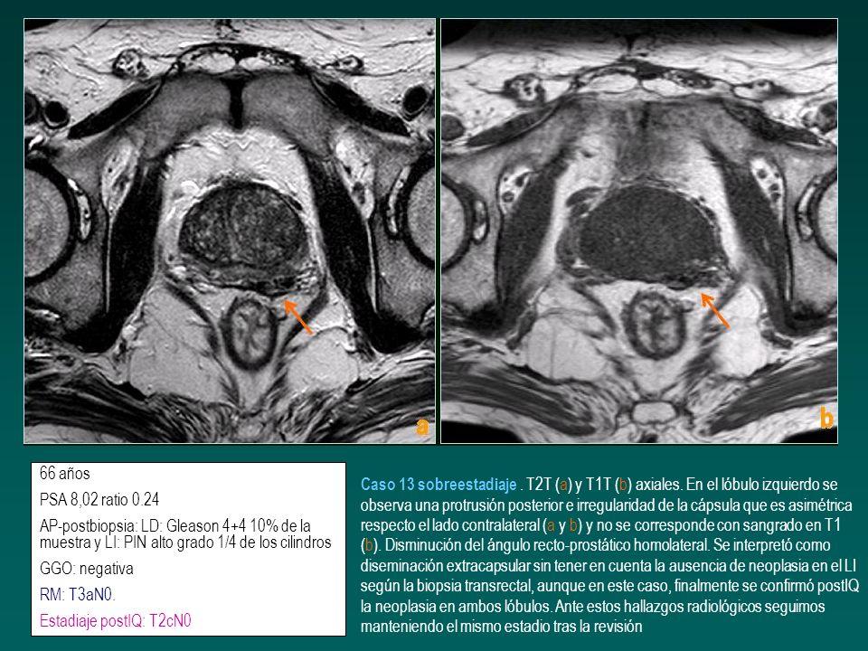 66 años PSA 8,02 ratio 0.24. AP-postbiopsia: LD: Gleason 4+4 10% de la muestra y LI: PIN alto grado 1/4 de los cilindros.