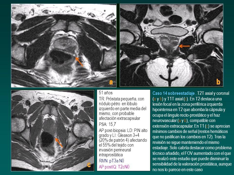 51 añosTR: Próstata pequeña, con nódulo pétro en lóbulo izquierdo en parte media del mismo, con probable afectación extracapsular.