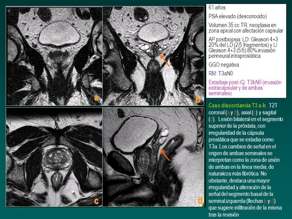 61 años PSA elevado (desconocido) Volumen 35 cc TR: neoplasia en zona apical con afectación capsular.