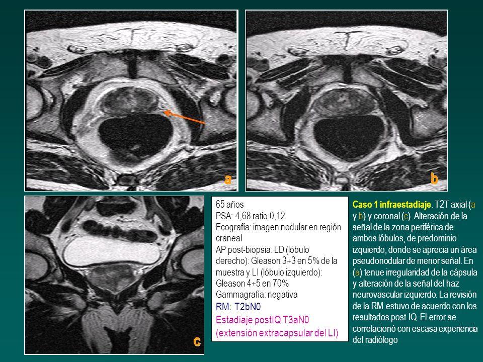 65 años PSA: 4,68 ratio 0,12 Ecografía: imagen nodular en región craneal AP post-biopsia: LD (lóbulo derecho): Gleason 3+3 en 5% de la muestra y LI (lóbulo izquierdo): Gleason 4+5 en 70% Gammagrafía: negativa RM: T2bN0 Estadiaje postIQ T3aN0 (extensión extracapsular del LI)