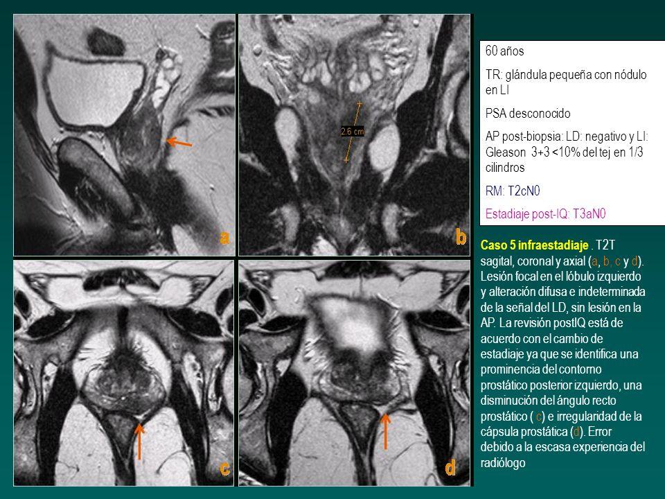 60 añosTR: glándula pequeña con nódulo en LI. PSA desconocido. AP post-biopsia: LD: negativo y LI: Gleason 3+3 <10% del tej en 1/3 cilindros.