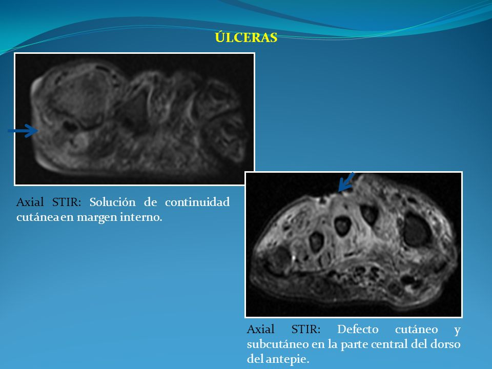 Úlceras Axial STIR: Solución de continuidad cutánea en margen interno.