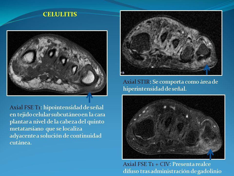 Celulitis Axial STIR: Se comporta como área de hiperintensidad de señal.