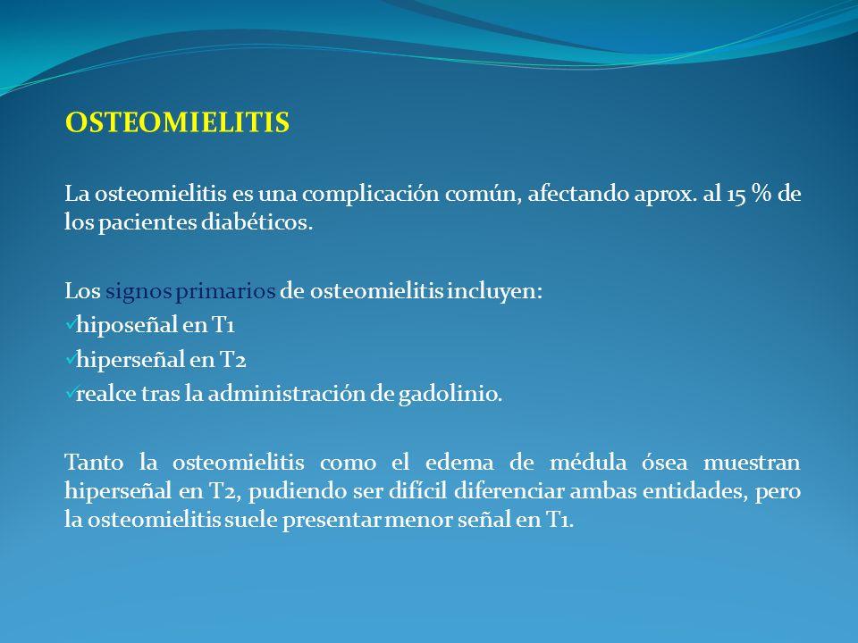 Osteomielitis La osteomielitis es una complicación común, afectando aprox. al 15 % de los pacientes diabéticos.
